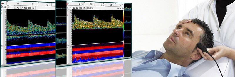 Doppler transcraniano